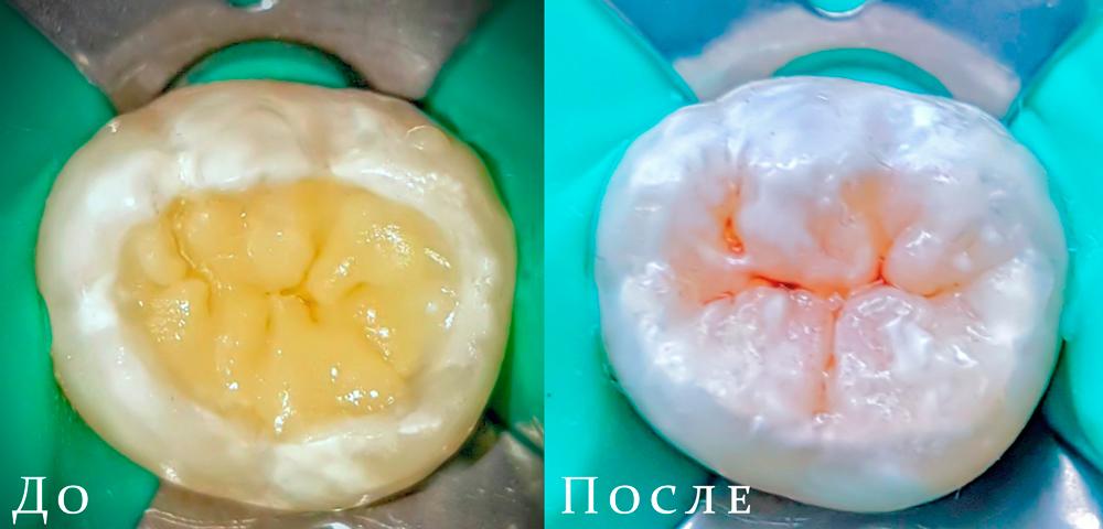 Работа врача-стоматолога-терапевта Мирзаева. М.З.